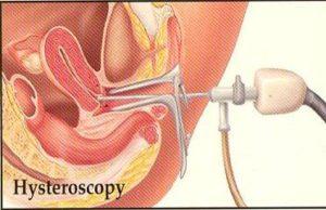 hysteroscopy-raipur